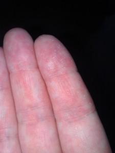 Fingrene mine med spor etter etsing i huden